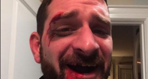 Fan bust his tooth but still wins on Tom Brady's Uggs hunt 3