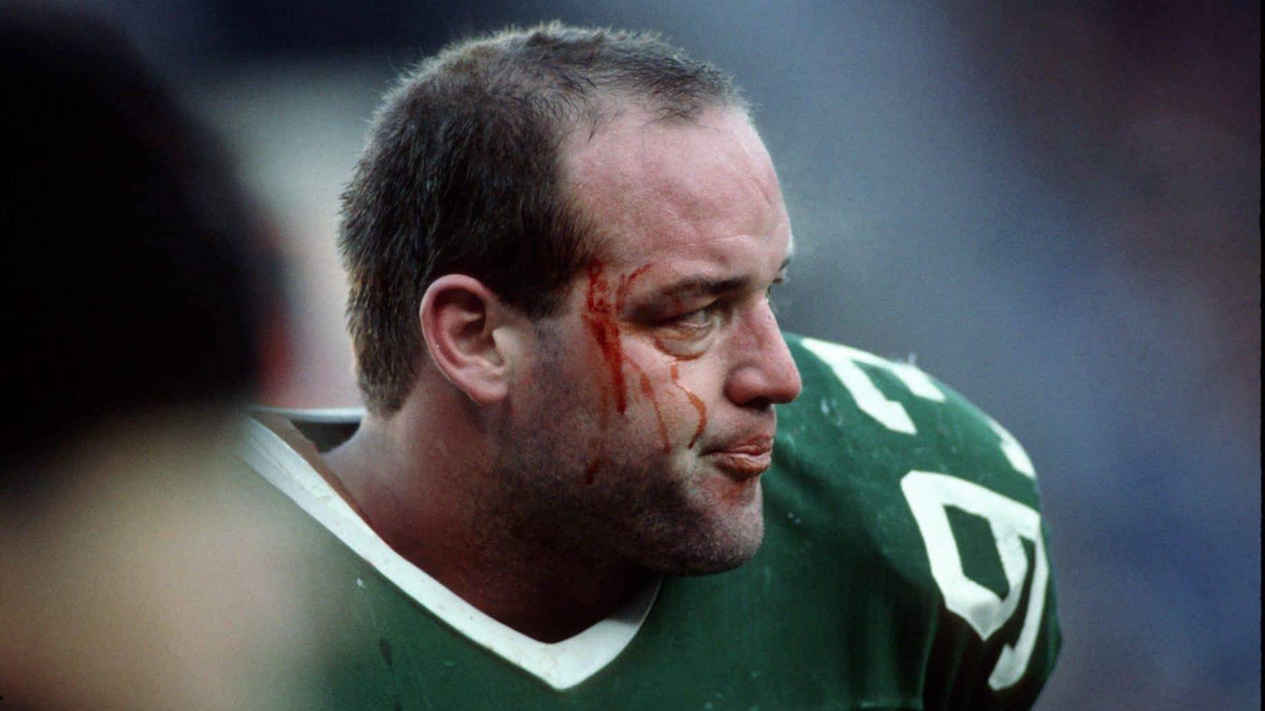 New York Jets Marty Lyons